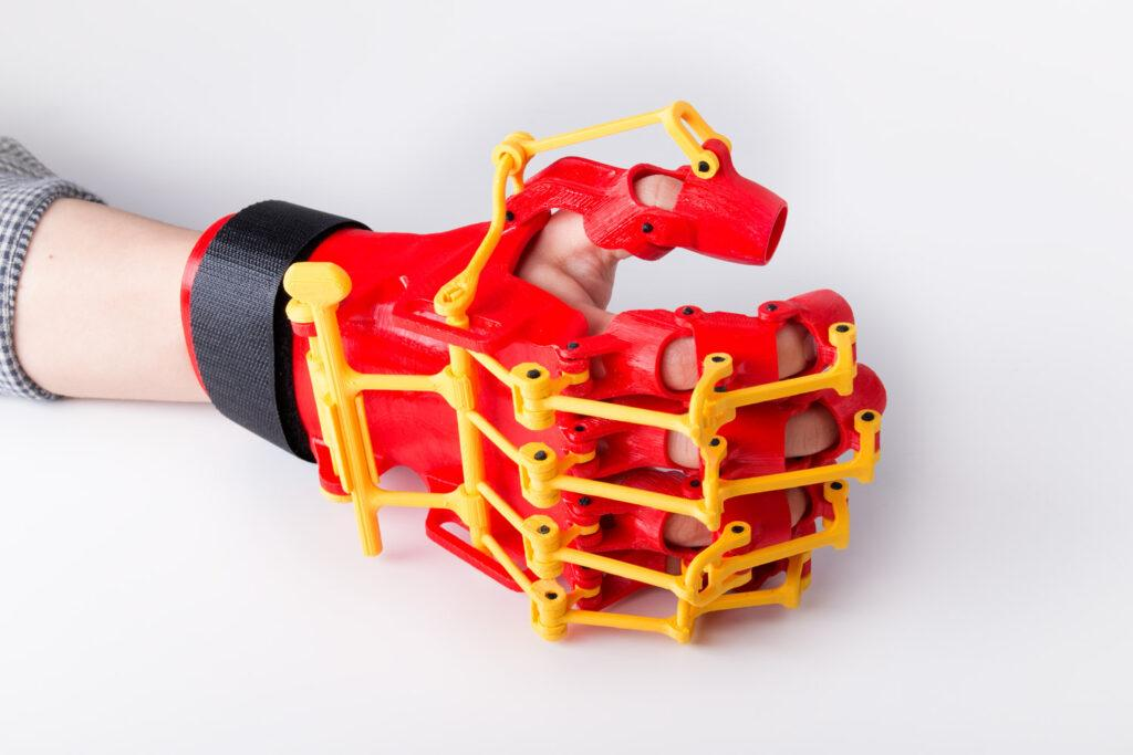 3D Printed Rehabilitation Orthosis - Hand