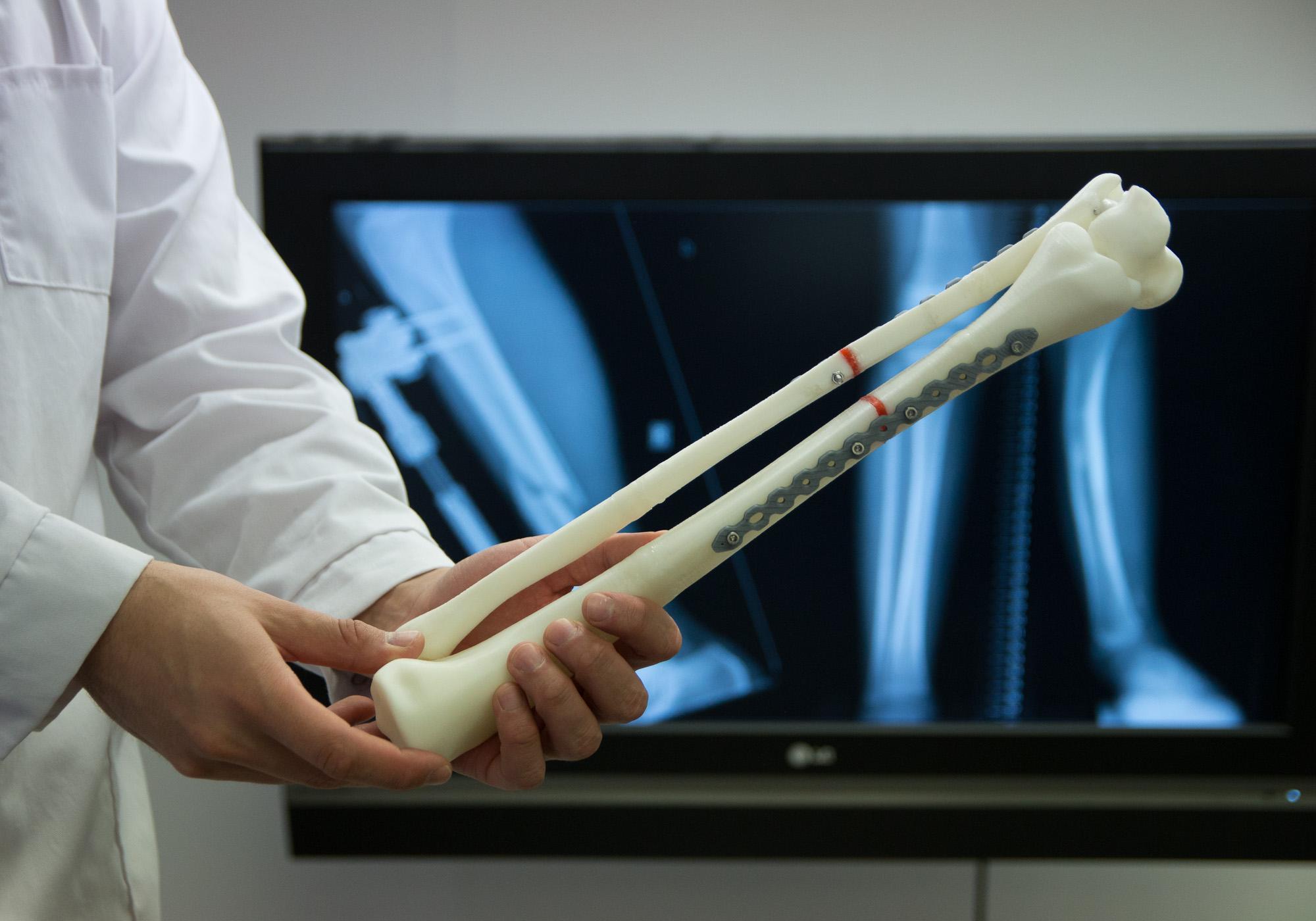 3D printed model of a bone stabilizer