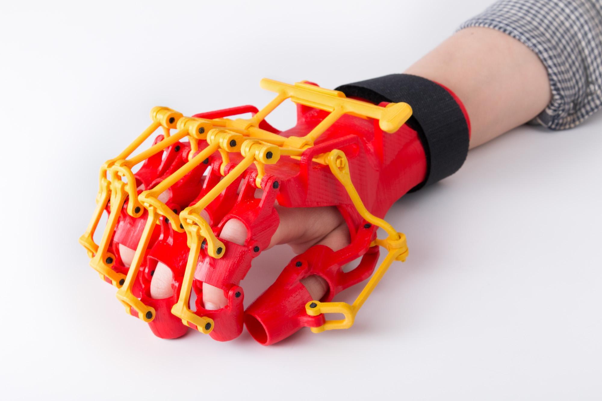 3D printed orthosis